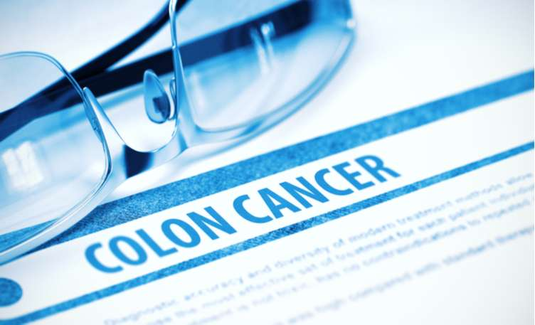 Early Signs And Symptoms Of Colon Cancer Medanta
