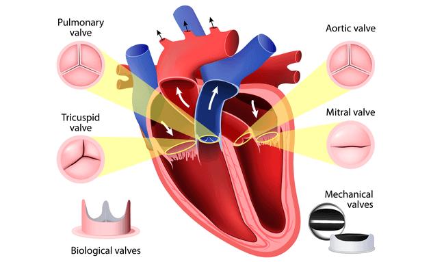 Heart-Valve