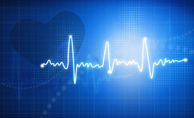 Erratic-heartbeats