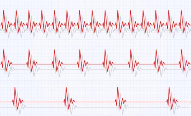 Heart-rhythm-problems