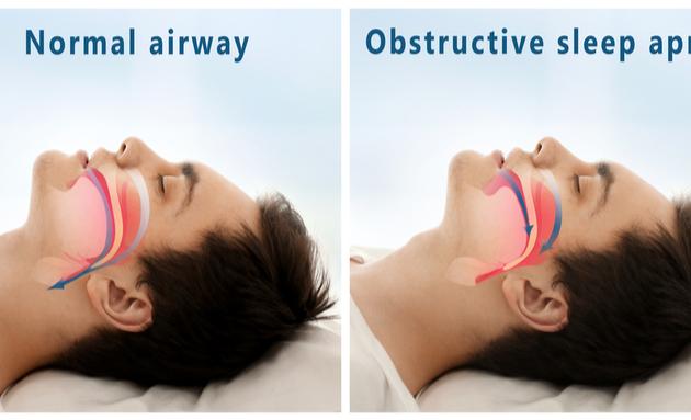 sleep-apnea-hypertension