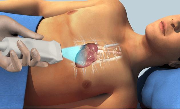 Echocardiogram or Echo Test