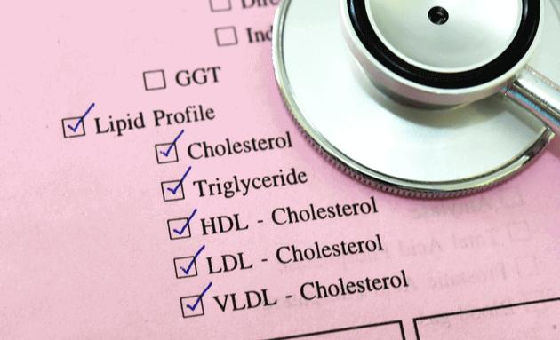 Lipid-Profile-test
