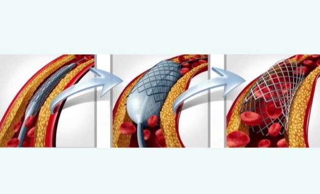 Angioplast-Medanta