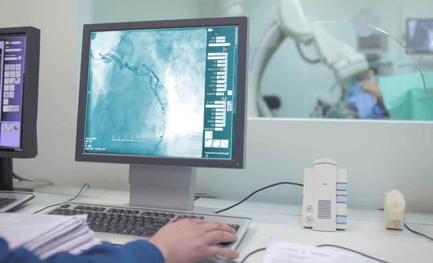 Angiogram-reading1