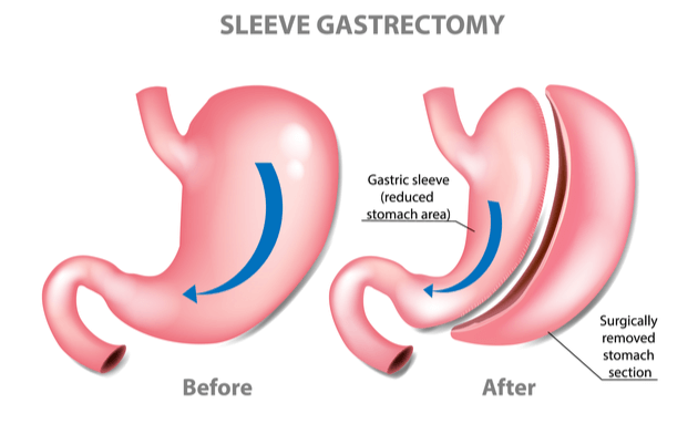 Bariatric-Surgery-Gastric-Sleeve-Gastrectomy