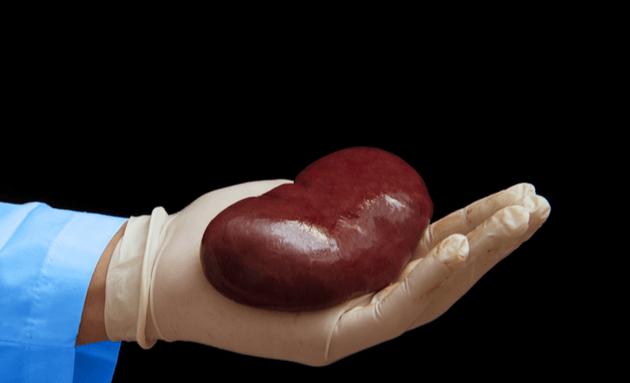 Kidney-Transplant-Care