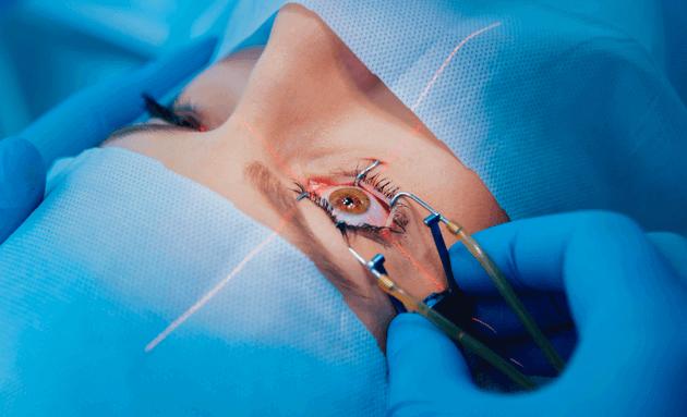 lasik-eye-surgeon