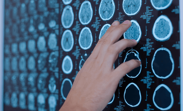 Treating-Brain-Tumour