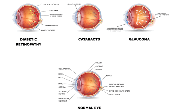 Diabetes-related-eye-conditions