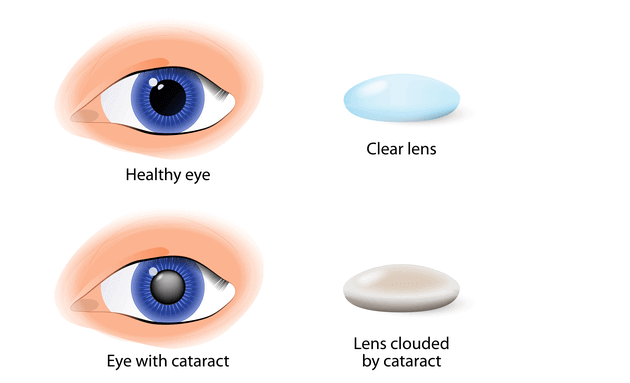 what-is-a-cataract