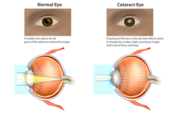 What-is-a-cataract-feature