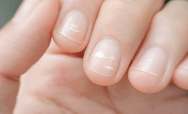 white-spots-on-your-nails