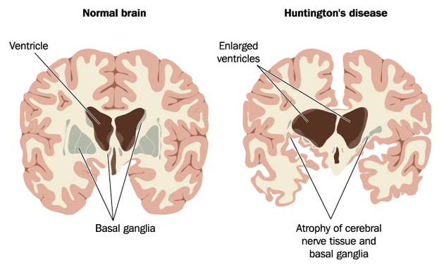 Huntingtons-Disease
