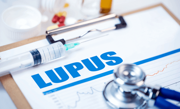 Lupus-can-cause-brain-fog