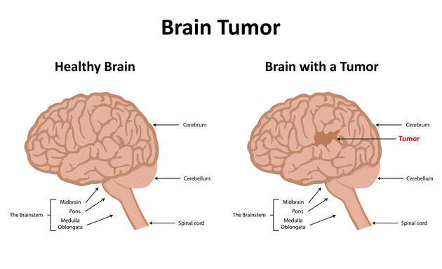 Silent-signs-and-symptoms-of-brain-tumour