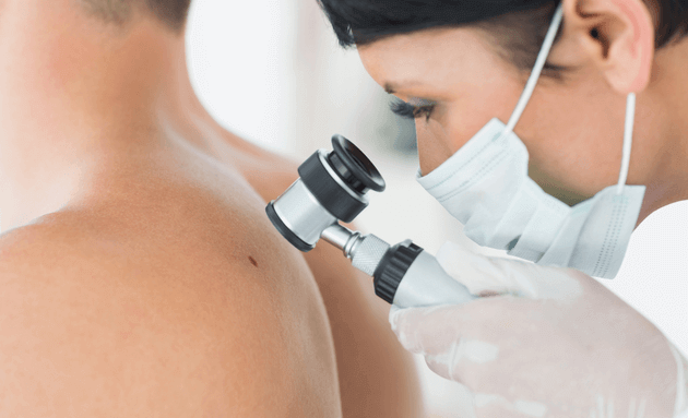 certified-dermatologist-checking-mole