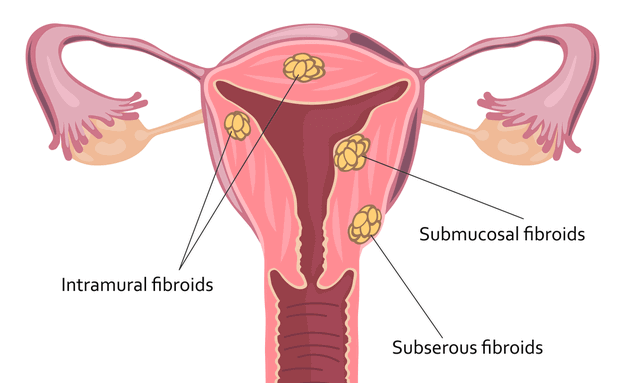types-of-uterine-fibroids