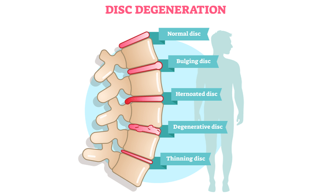 Degenerative-Disc-Disease-define