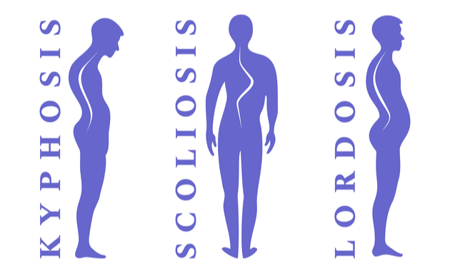Types-of-Spine-Curvature-Disorders