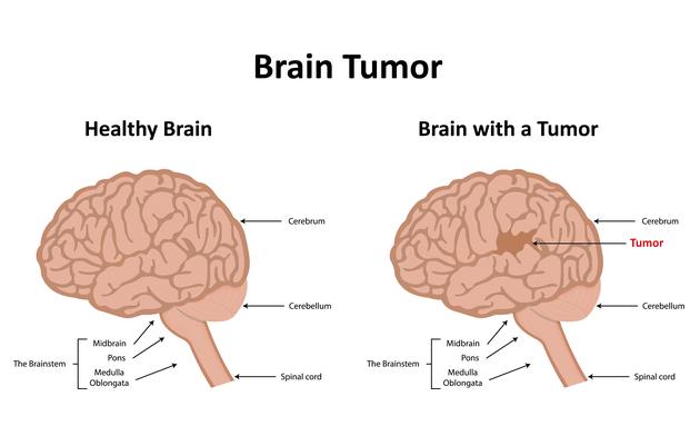 Brain-tumour-new