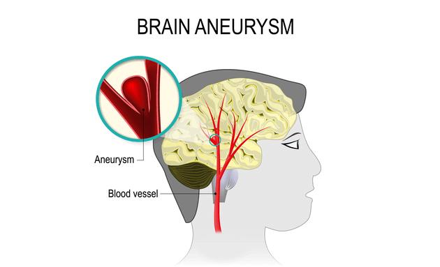 Brain-aneurysms