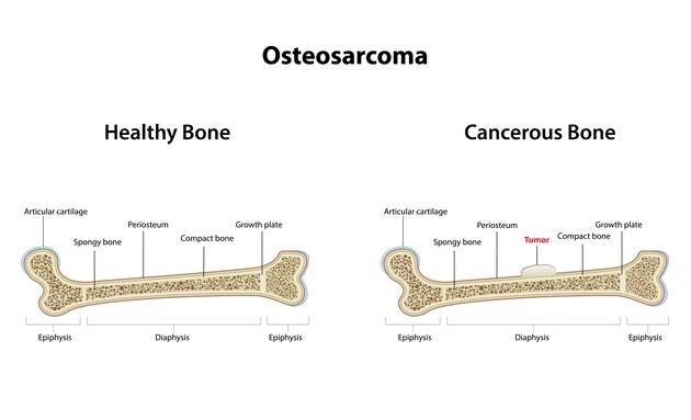 What-is-Bone-Tumour