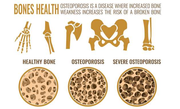 What-is-osteoporosis
