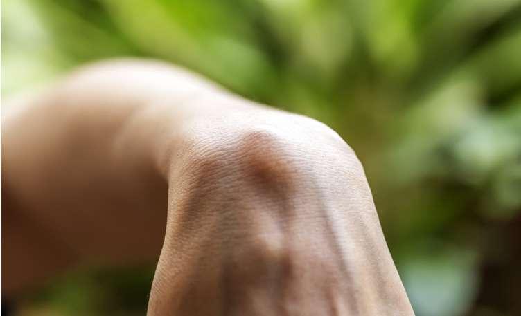 sarcoma cancer lump)