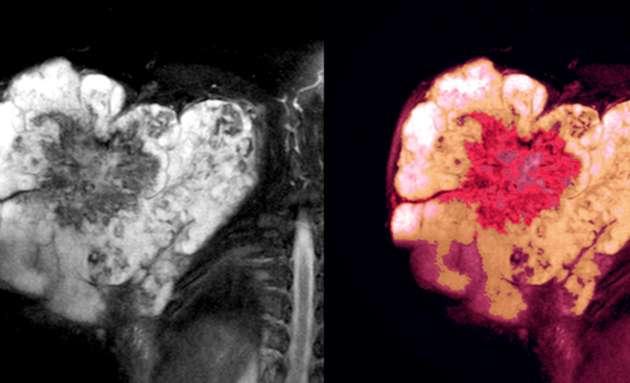 Diagnosing-Soft-Tissue-Sarcoma
