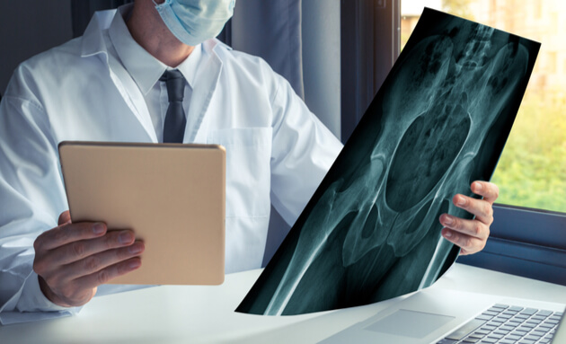 hip-surgery-doc-xray-1