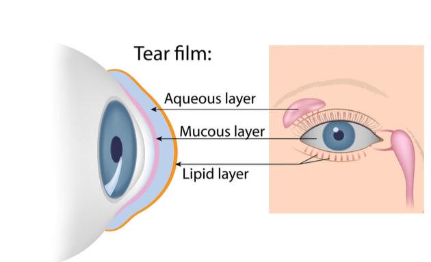 Dry-eye-disease-cause